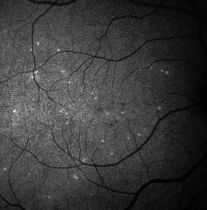 Retina of Glaucoma Patient Using DARC Test