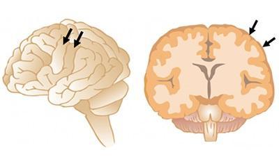 Figure 1. Gyri on the Brain Surface (Arrows)