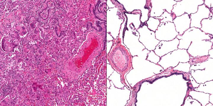 Comparison of Patient's Lung Tissue and Healthy Lung Tissue