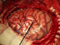 The Surface of the Brain, Pictured During Surgery