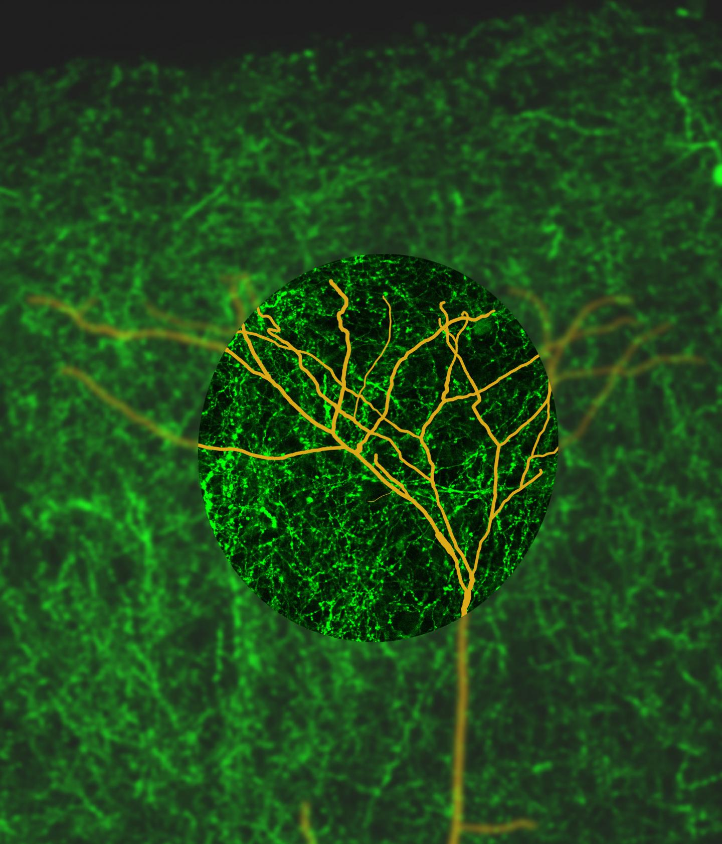 Distal Dendrites Amongst a Sea of Cholinergic Axons