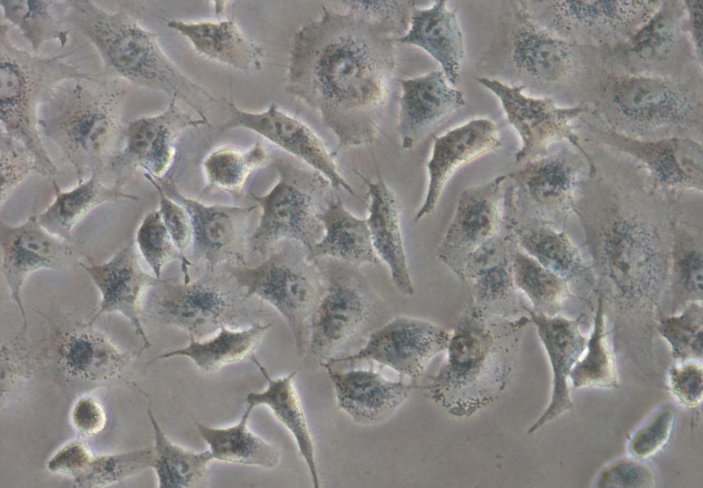 Human Lung Adeconarcinoma Cell Used in This Research