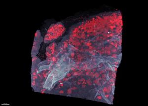 Video Pancreas in 3D