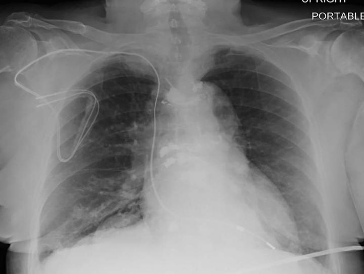 MRI Safely Performed in Patients with Pacemakers and ICDs