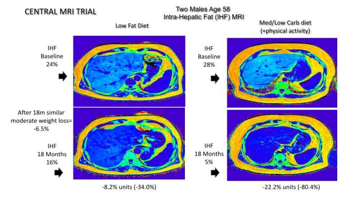 MRI Image Shows Intra-Hepatic Fat Loss Comparison