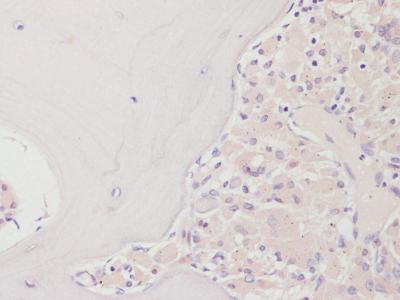 Osteolysis with denosumab treatment
