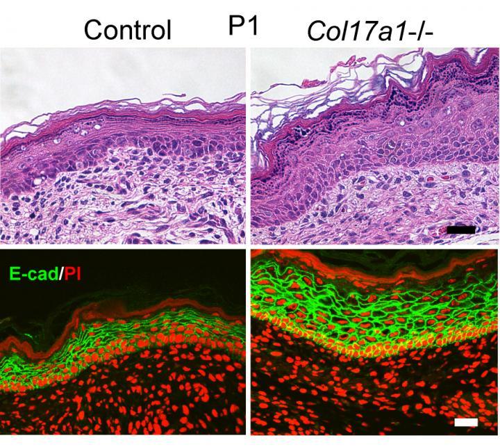 Skin Lacking COL17 vs. Control Skins