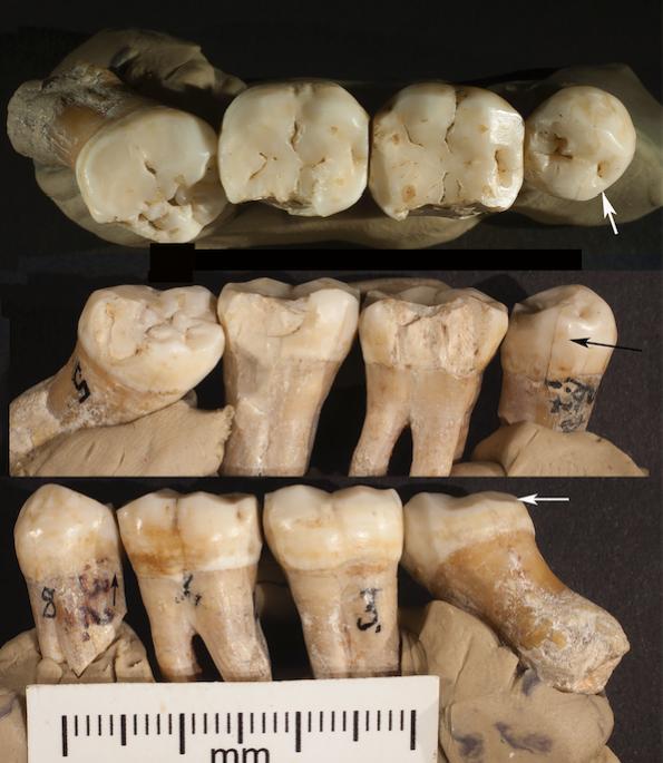 Toothpick Grooves on 4 Neanderthal Teeth