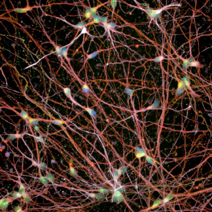 Human Stem-Cell-Derived Spinal Motor Neurons