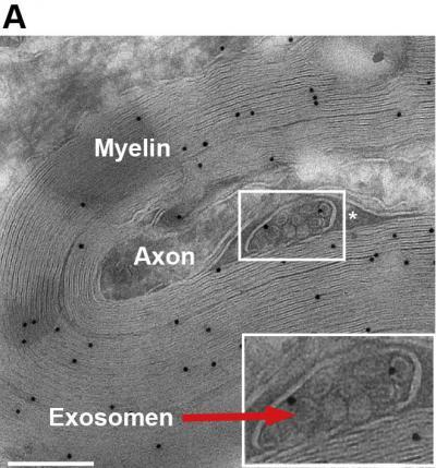 Exosomes (1 of 2)