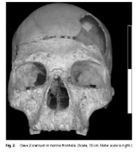 Oase 2 Cranium in Norma Frontalis