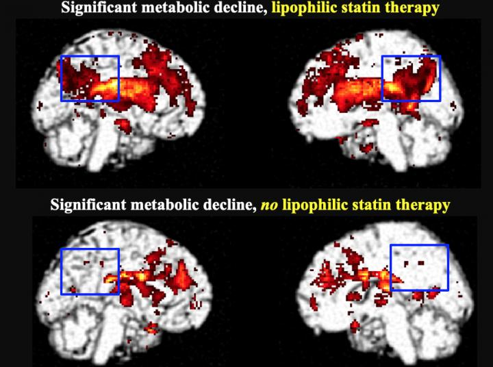 Significant metabolic decline in the posterior cingulate cortex in lipophilic statin users
