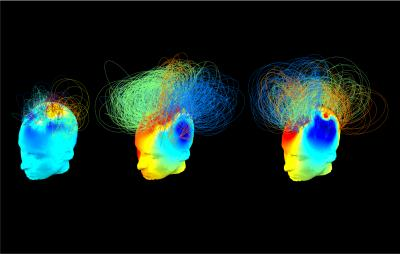 Brain Activity in Health and Vegetative State Patients