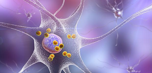 Autoimmunity in Parkinson's Disease