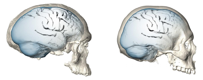 Brain Shape Evolution in <i>Homo sapiens</i>
