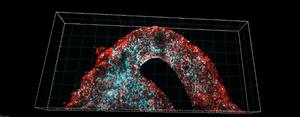 Microscopic image of the 3D-bioprinted glioblastoma model.