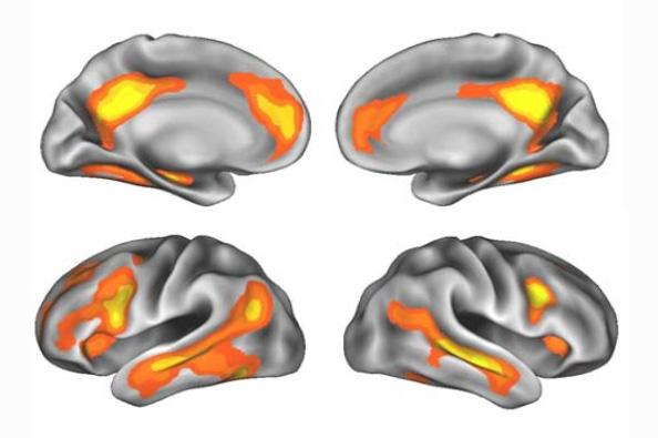 Brain Regions with Volume Changes after Pregnancy