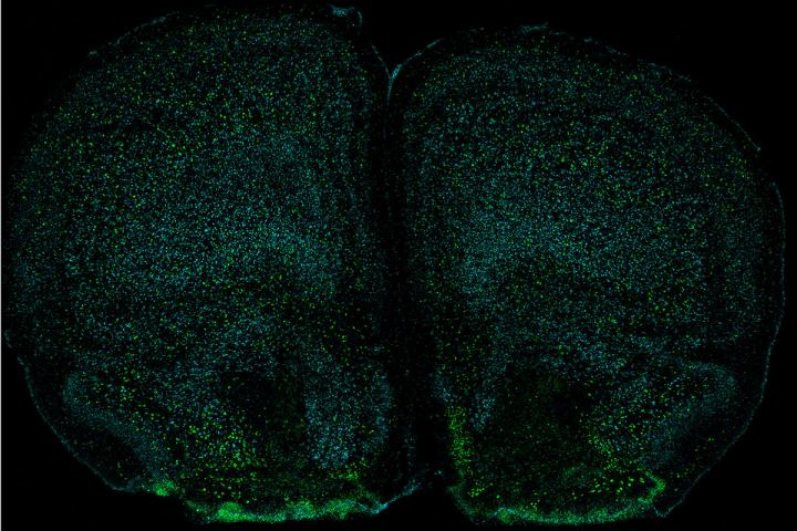 Neurons with IL-17 receptor