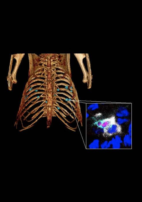 Lung cancer nodules