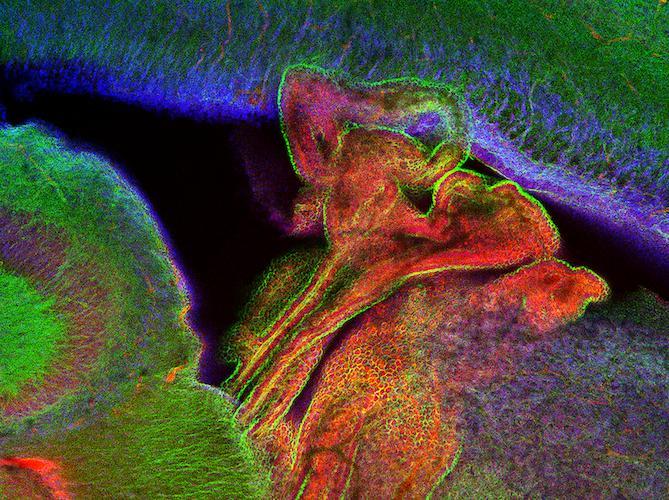 Choroid plexus of mouse neonates