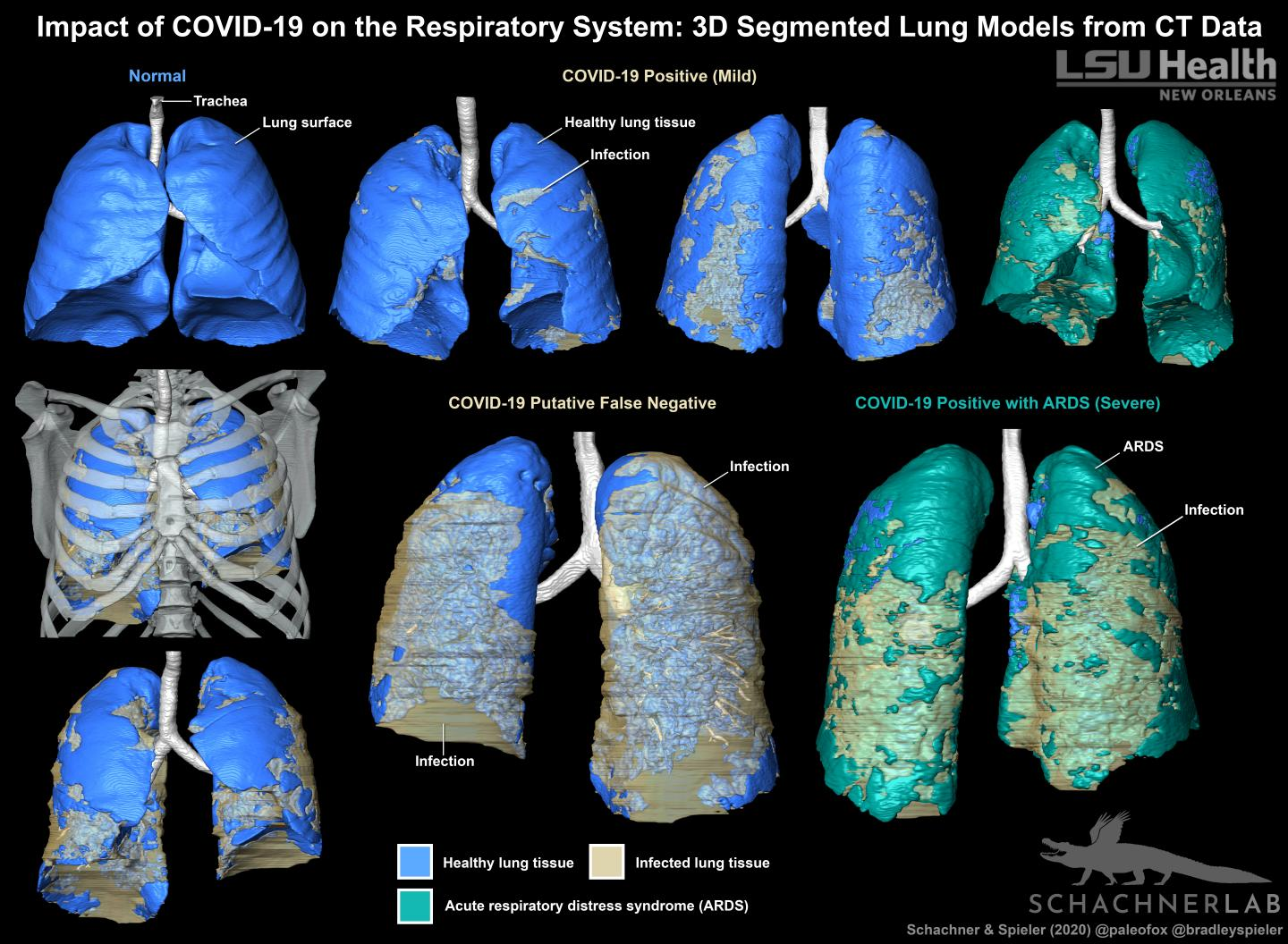 3D Segmented Lung Models of COVID-19 from CT Data
