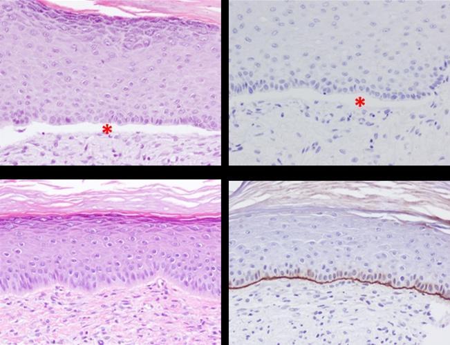 Correctness Analysis of Transplantation in Mice