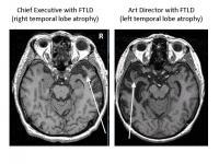 FTLD Patient Brain Images
