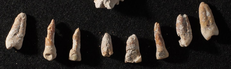 Teeth with dental inlays