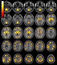 Brain Imaging (2 of 2)
