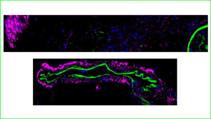 A potential therapeutic target to treat cerebral blood alterations