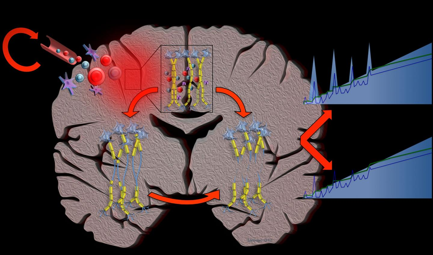Computational Simulations Suggest Multiple Sclerosis is a Single Disease