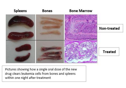 Leukemia Cancer Cells Before and After New Drug Treatment