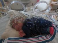 Measuring Preterm Baby Brain Function