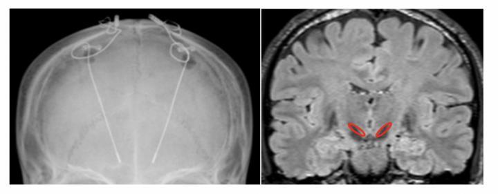 Figure 2: X-ray Image