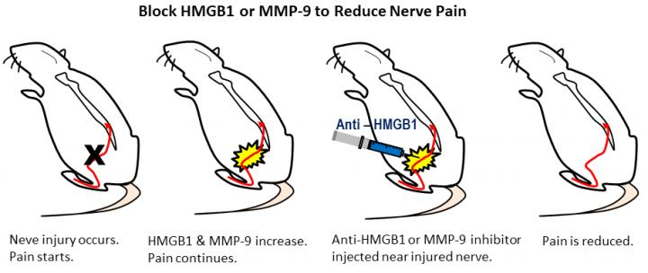 Block HMGB1 or MMP-9 to Reduce Nerve Pain