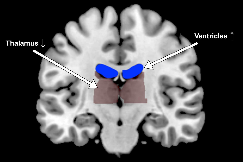 Dehydration Brain Shape Changes