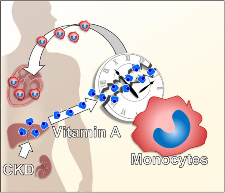 How CKD results in heart inflammation and fibrosis