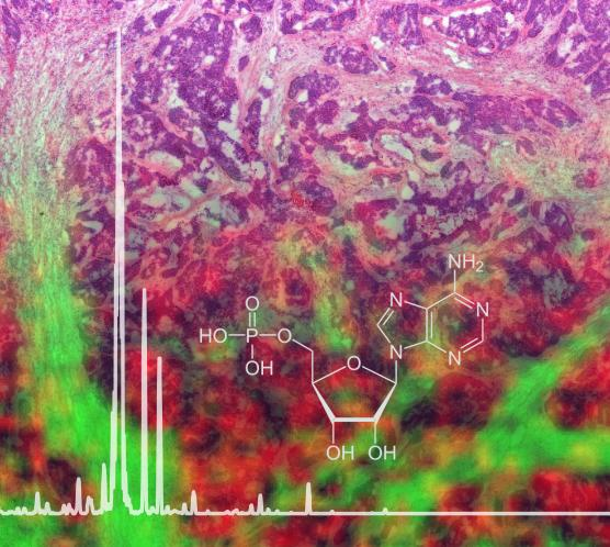 New Mass Spectrometry Imaging