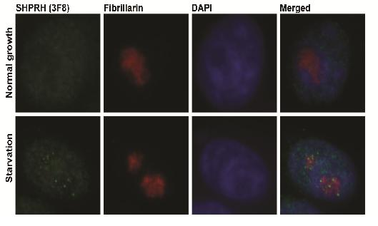 Localization of the SHPRH Protein inside Cellular Nucleus