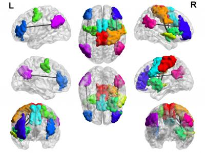 Brain Hyperconnectivity in Compulsive Video Game Players