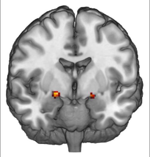 Huettel Functional MRI