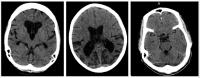 Scans of Post-Ebola affected brains