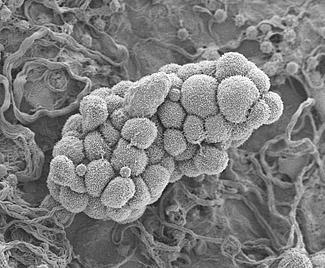 Ovarian Cancer Cells