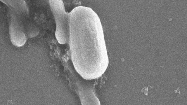 <i>Bacillus timonensis</i>