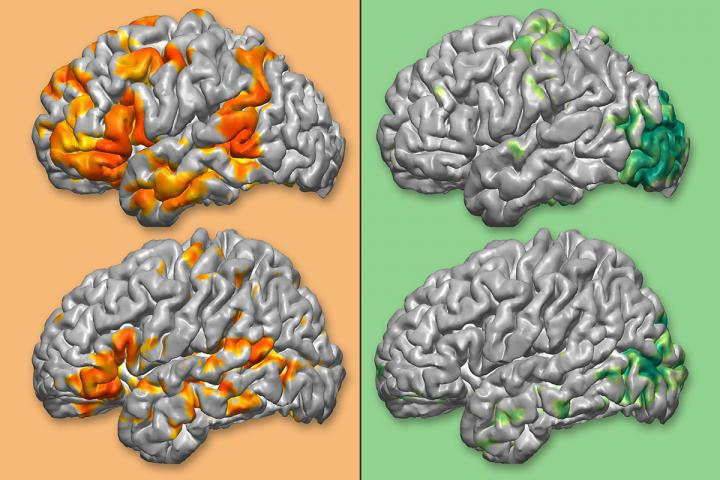 Maps of Brain Functions