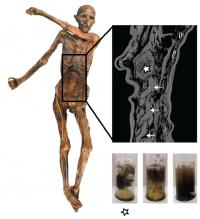 The Iceman's Gastrointestinal Tract