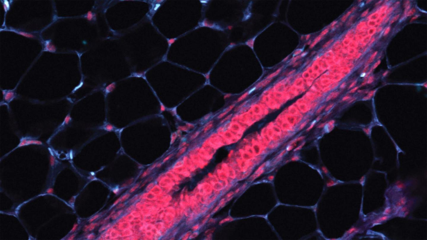 Mammary tissues cells