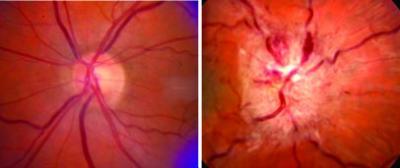 Optic Nerve Swelling in IIH