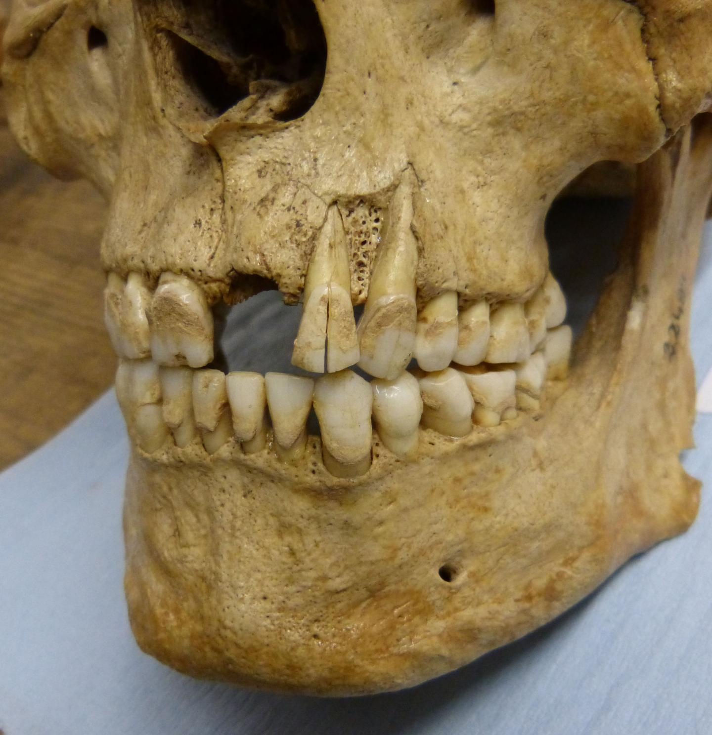 Skeleton Sampled for the Study