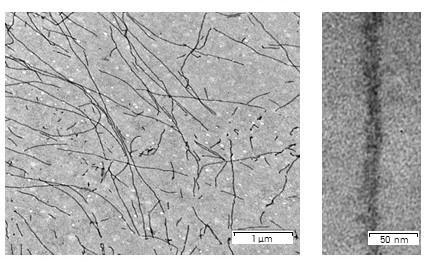 Electron micrograph of Sup35NM fibrils